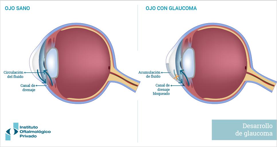 Glaucoma | Enfermedades | IOP, Instituto Oftalmológico Privado
