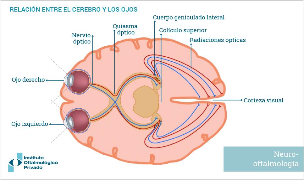 Neuro-oftalmología | Especialidades | IOP, Instituto Oftalmológico ...